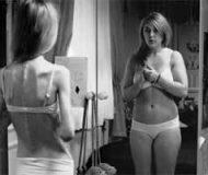 La anorexia, una forma delgada de vivir o morir