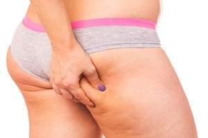 Como eliminar la celulitis de las piernas y gluteos en casa